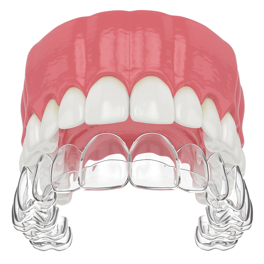 Removable retainers londonderry